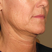 Ultherapy Before 175x175