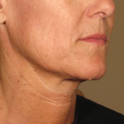 Ultherapy1.5mm-0297J-K_90Day-_AFTER_Lower2_hi-res